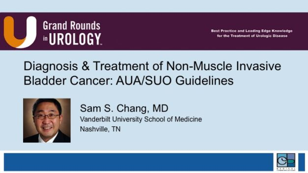 Diagnosis and Treatment of Non-Muscle Invasive Bladder Cancer: AUA/SUO Guidelines