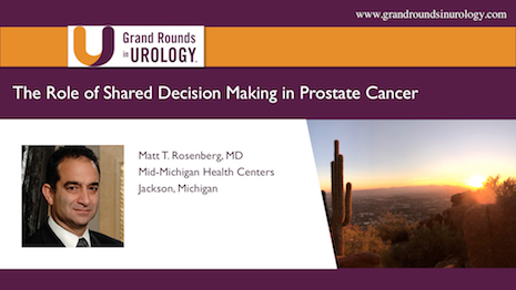 The Role Of Shared Decision Making in Prostate Cancer