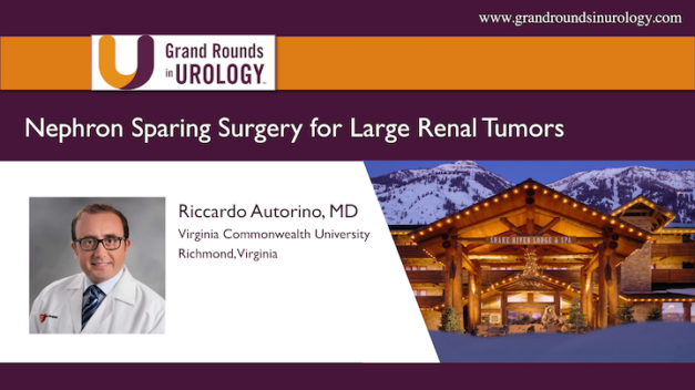 Nephron Sparing Surgery for Large Renal Tumors: Always, Sometimes, or Never?