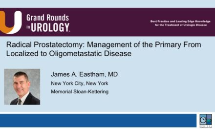 Radical Prostatectomy: Management of the Primary From Localized to Oligometastatic Disease