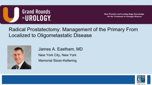 Radical Prostatectomy: Management of the Primary From Localized to Oligometastatic Disease