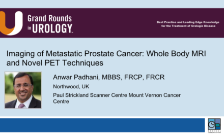 Imaging of Metastatic Prostate Cancer: Whole Body MRI and Novel PET Techniques
