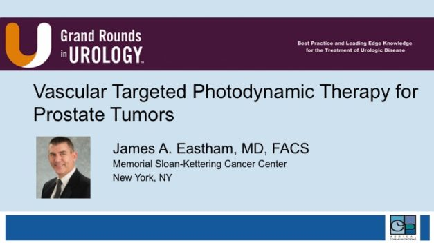Vascular Targeted Photodynamic Therapy for Prostate Tumors