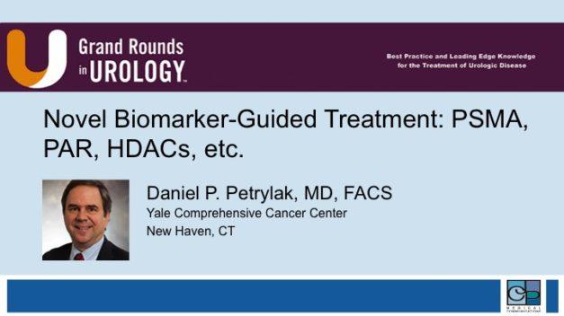 Novel Biomarker-Guided Treatment: PSMA, PAR, HDACs, etc.