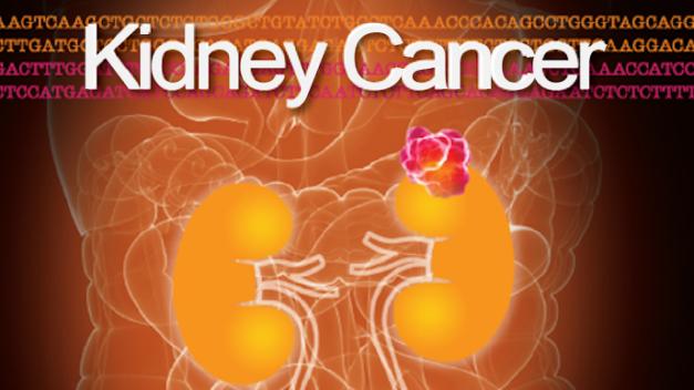 Kidney Cancer Journal | Volume 4, Issue 3