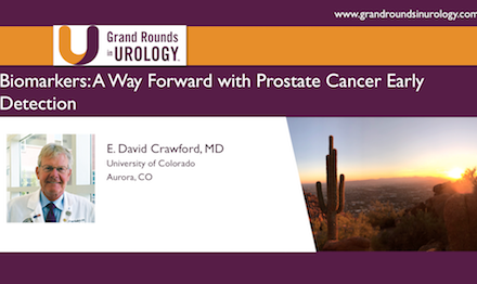 Biomarkers: A Way Forward with Prostate Cancer Early Detection