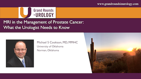 MRI in the Management of Prostate Cancer: What Urologists Need to Know