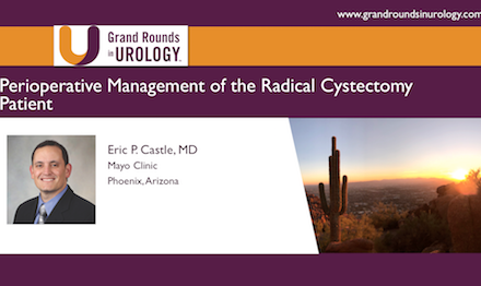 Perioperative Management of the Radical Cystectomy Patient