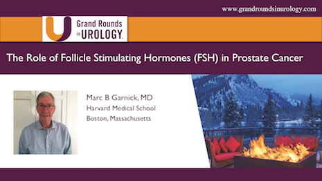 The Role of Follicle Stimulating Hormones (FSH) in Prostate Cancer