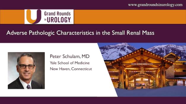 Adverse Pathologic Characteristics in the Small Renal Mass
