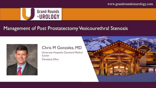 Management of Post Prostatectomy Vesicourethral Stenosis