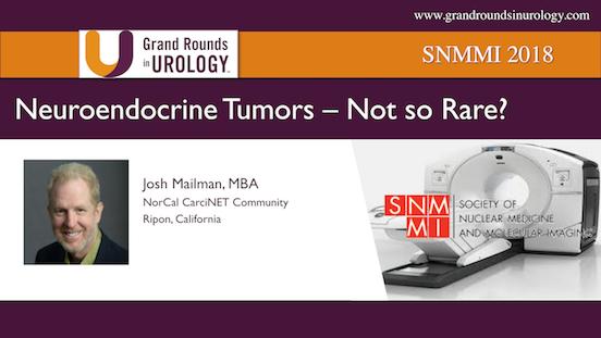 Neuroendocrine Tumors   Not so Rare?
