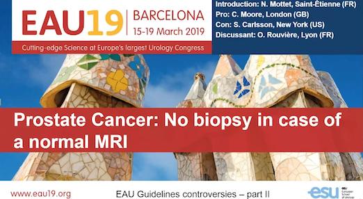 Prostate Cancer – No Biopsy in Case of a Normal MRI