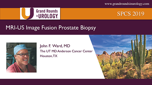 MRI-US Image Fusion Prostate Biopsy