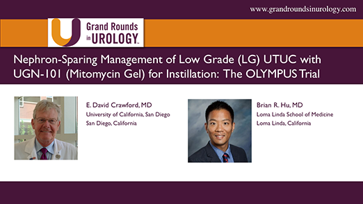 Nephron-Sparing Management of Low Grade UTUC with UGN-101 for Instillation-The OLYMPUS Trial