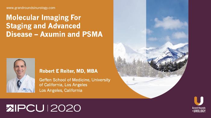Dr. Reiter - Molecular imaging prostate cancer