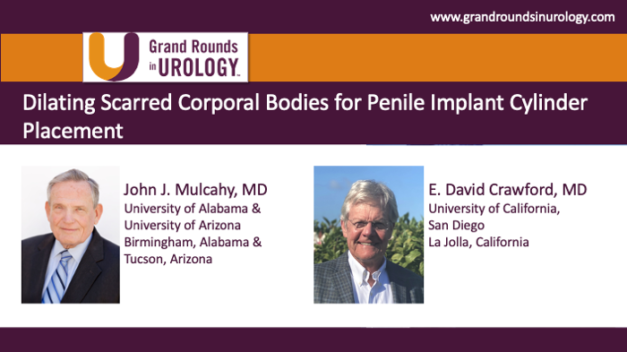 Dilating Scarred Corporal Bodies for Penile Implant Cylinder Placement