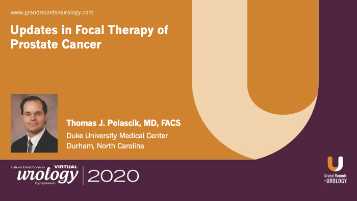 Dr. Polascik - Focal therapy prostate cancer